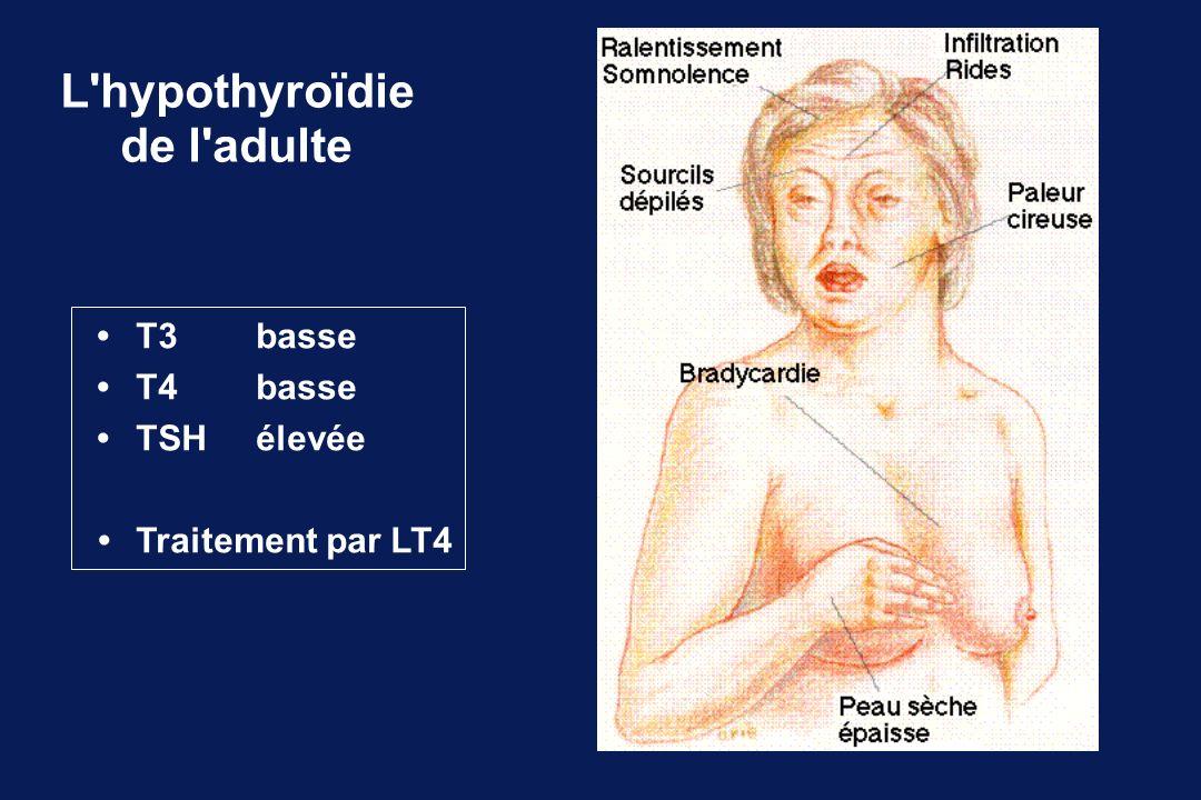 L'hypothyroïdie de l'adulte T3basse T4 basse TSHélevée Traitement par LT4