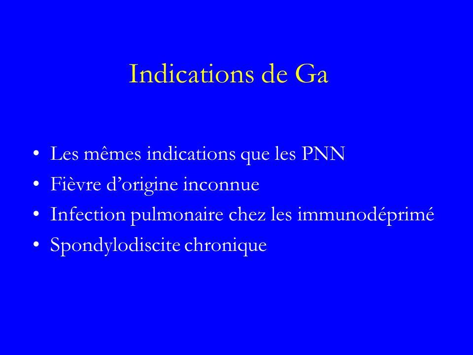 Indications de Ga Les mêmes indications que les PNN Fièvre dorigine inconnue Infection pulmonaire chez les immunodéprimé Spondylodiscite chronique