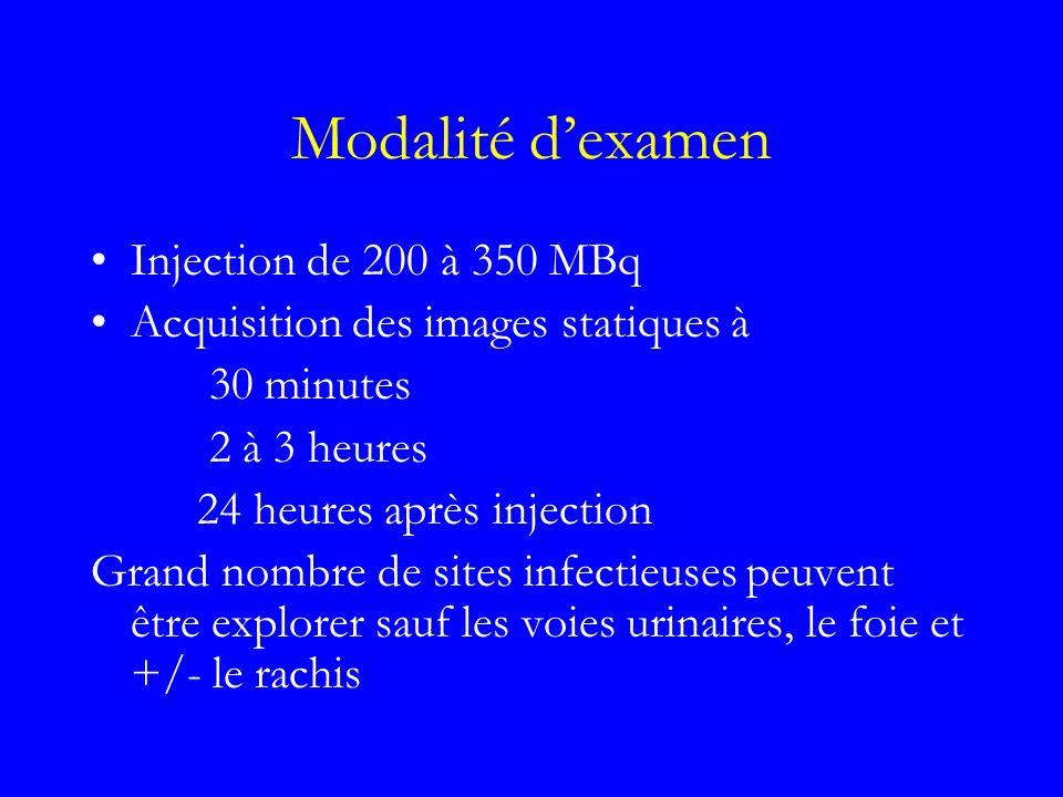 Modalité dexamen Injection de 200 à 350 MBq Acquisition des images statiques à 30 minutes 2 à 3 heures 24 heures après injection Grand nombre de sites