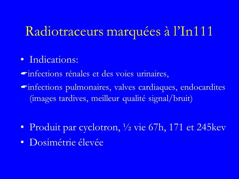 Radiotraceurs marquées à lIn111 Indications: infections rénales et des voies urinaires, infections pulmonaires, valves cardiaques, endocardites (image