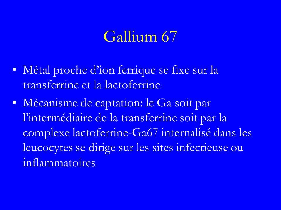 Gallium 67 Métal proche dion ferrique se fixe sur la transferrine et la lactoferrine Mécanisme de captation: le Ga soit par lintermédiaire de la trans