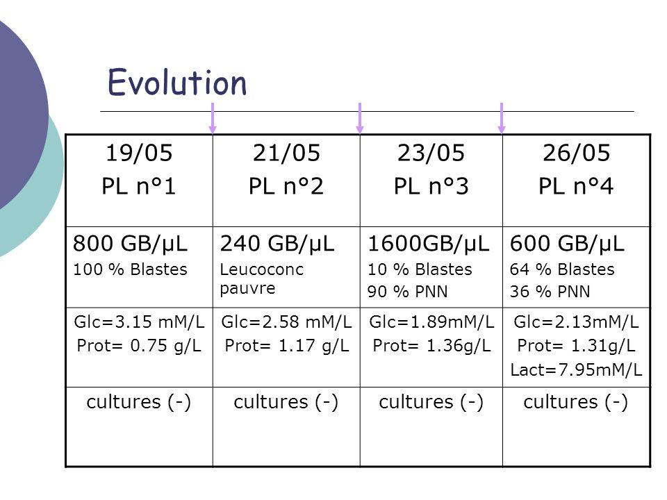 Evolution 19/05 PL n°1 21/05 PL n°2 23/05 PL n°3 26/05 PL n°4 800 GB/µL 100 % Blastes 240 GB/µL Leucoconc pauvre 1600GB/µL 10 % Blastes 90 % PNN 600 G