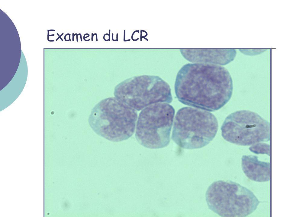 Examen du LCR On retrouvera 512 élements nuclées/µL et 3 GR/µL La coloration de gram est négative Lencre de chine est négative Le MGG montre :