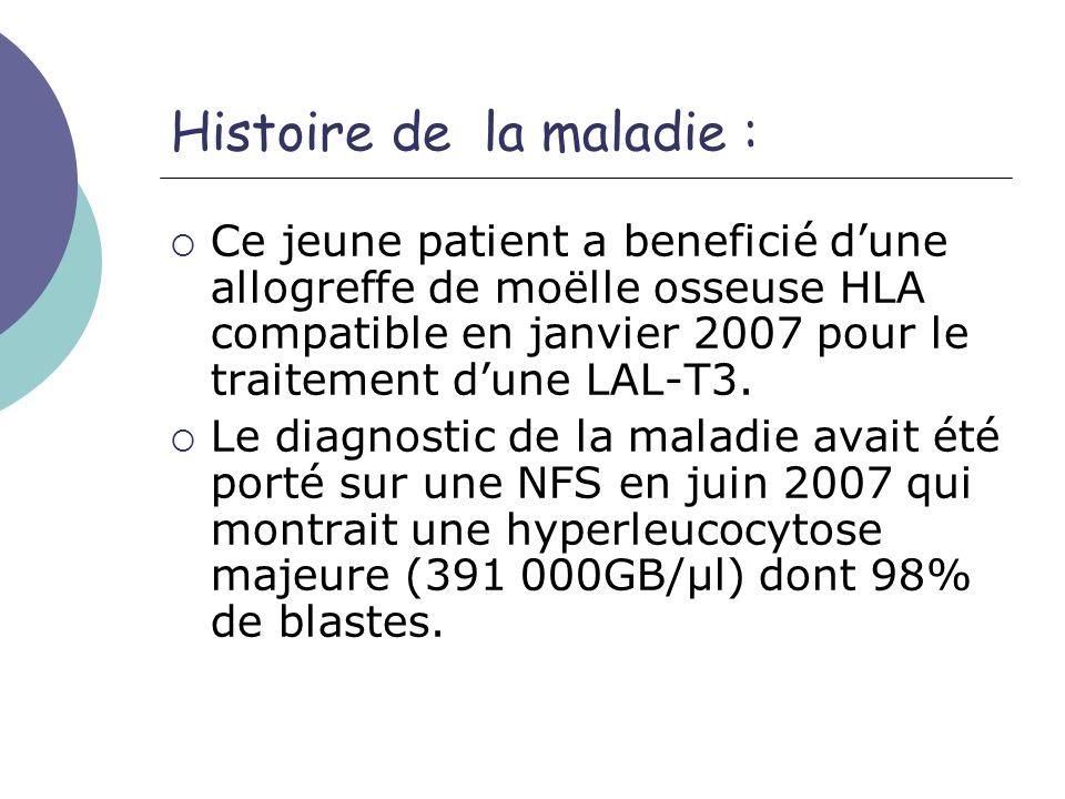 Histoire de la maladie : Ce jeune patient a beneficié dune allogreffe de moëlle osseuse HLA compatible en janvier 2007 pour le traitement dune LAL-T3.
