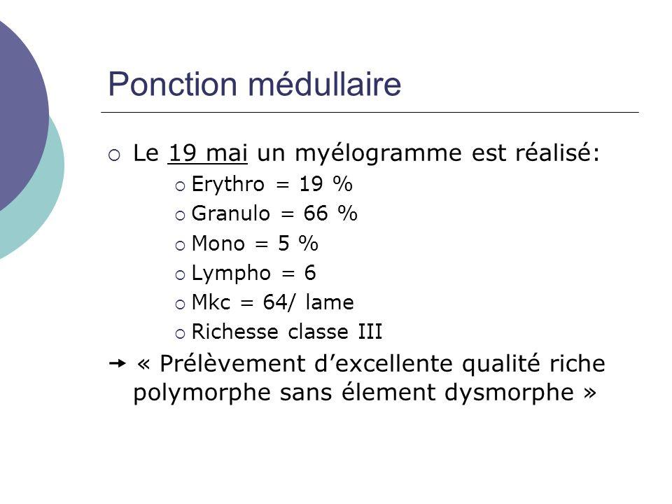 Le 19 mai un myélogramme est réalisé: Erythro = 19 % Granulo = 66 % Mono = 5 % Lympho = 6 Mkc = 64/ lame Richesse classe III « Prélèvement dexcellente