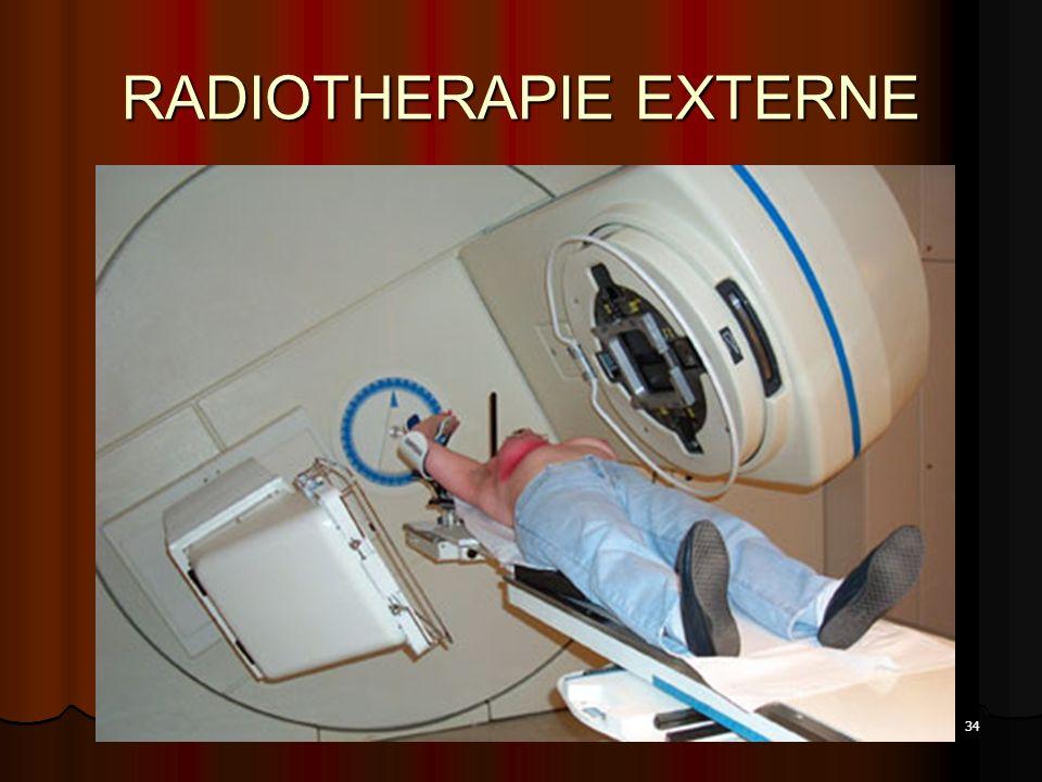 34 RADIOTHERAPIE EXTERNE