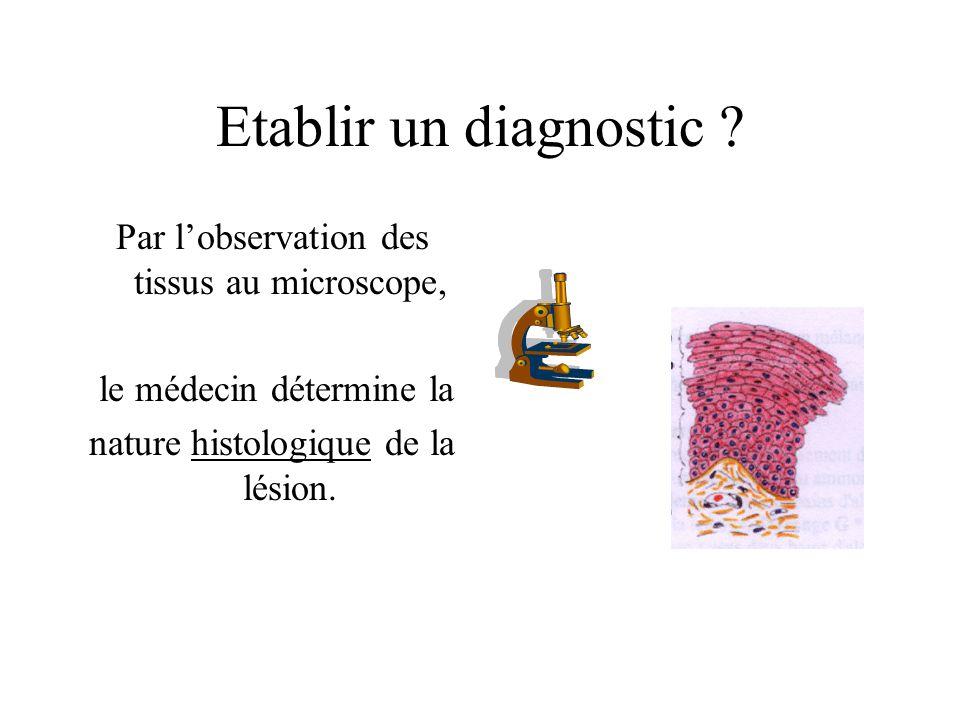 Etablir un diagnostic ? Par lobservation des tissus au microscope, le médecin détermine la nature histologique de la lésion.