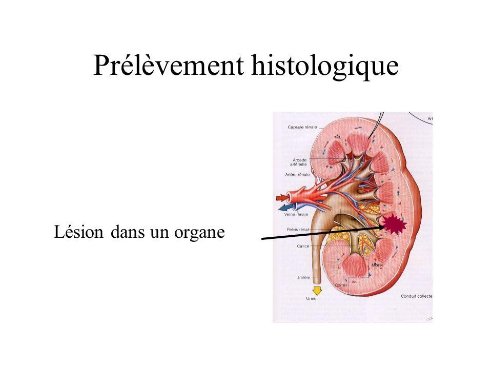 Prélèvement histologique Lésion dans un organe