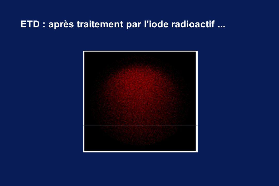 ETD : après traitement par l'iode radioactif...