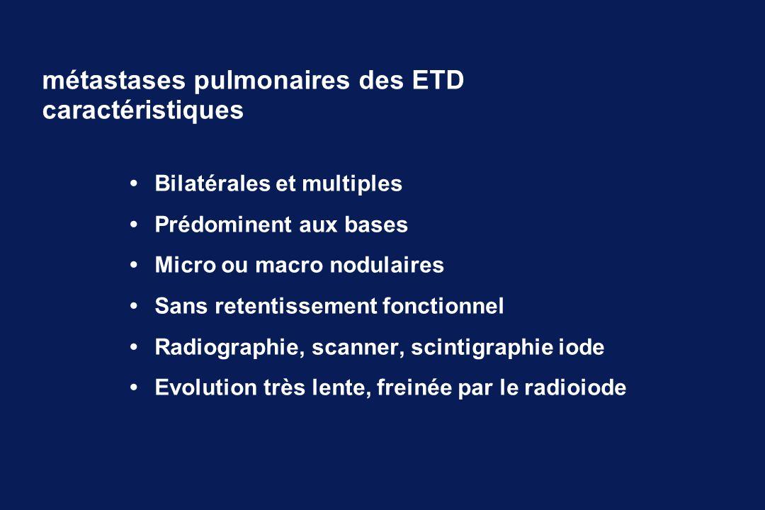 Bilatérales et multiples Prédominent aux bases Micro ou macro nodulaires Sans retentissement fonctionnel Radiographie, scanner, scintigraphie iode Evo