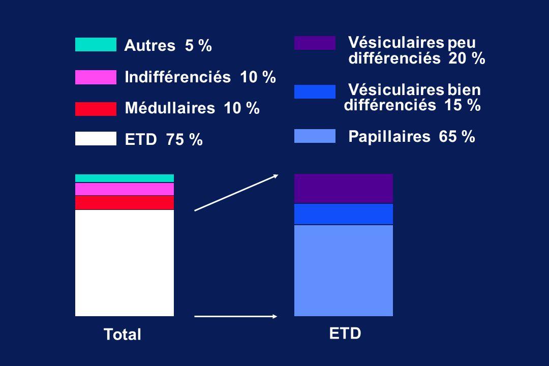 Total ETD Autres 5 % Indifférenciés 10 % Médullaires 10 % ETD 75 % Vésiculaires peu différenciés 20 % Vésiculaires bien différenciés 15 % Papillaires