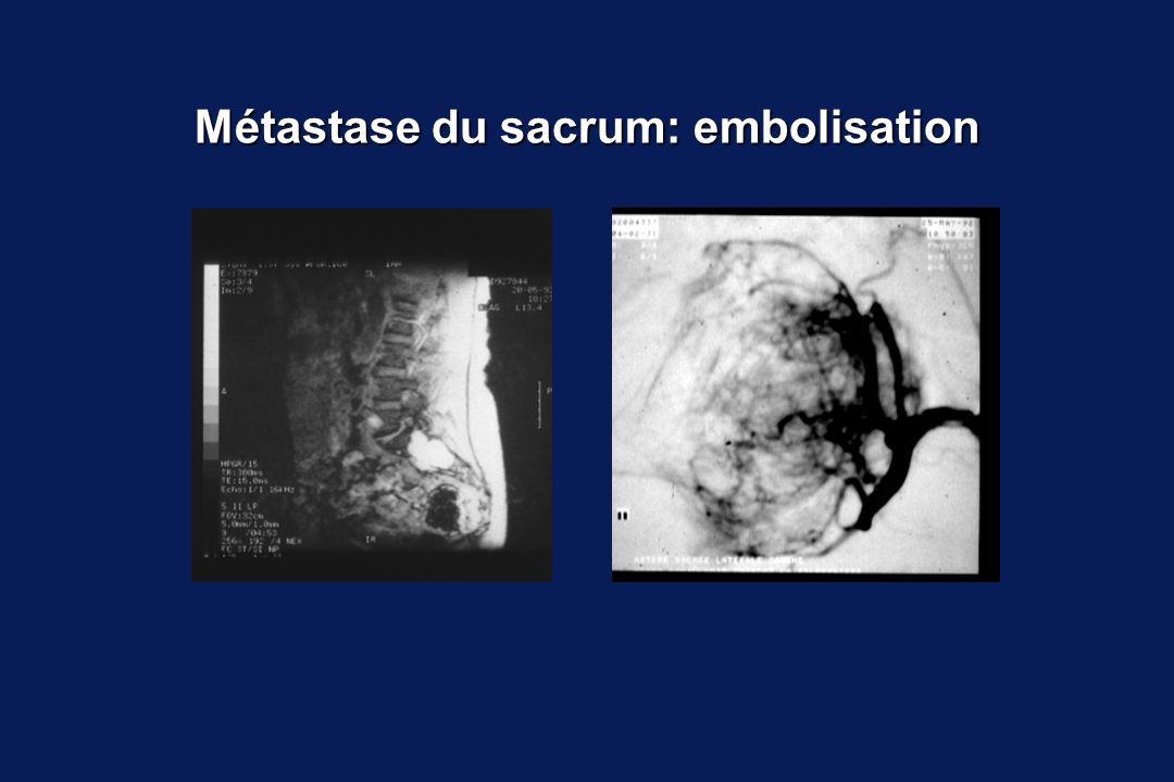Métastase du sacrum: embolisation