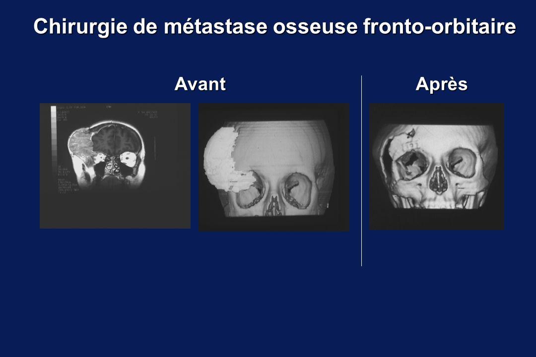 Chirurgie de métastase osseuse fronto-orbitaire AprèsAvant