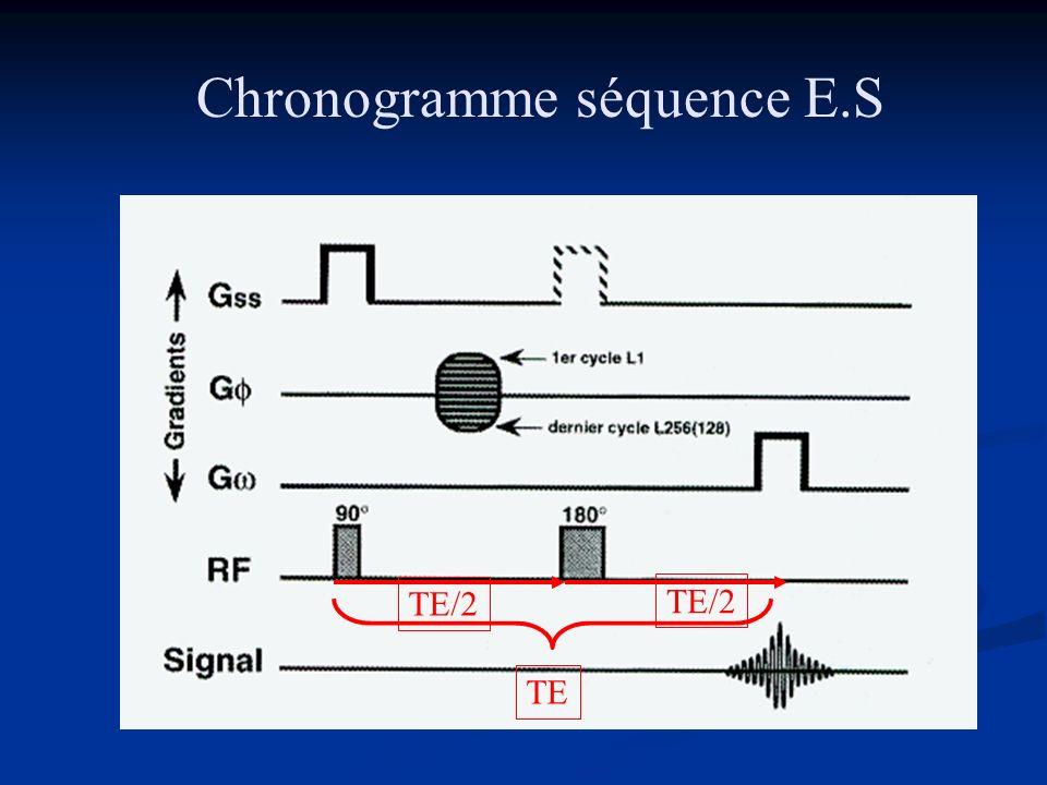 Chronogramme séquence E.S TE/2 TE