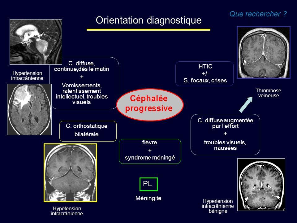 Céphalée progressive Que rechercher ? fièvre + syndrome méningé Méningite PL C. diffuse augmentée par leffort + troubles visuels, nausées Thrombose ve