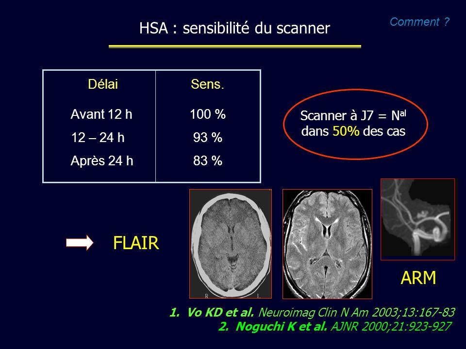HSA : sensibilité du scanner 1.Vo KD et al. Neuroimag Clin N Am 2003;13:167-83 2.Noguchi K et al. AJNR 2000;21:923-927 Avant 12 h 12 – 24 h Après 24 h