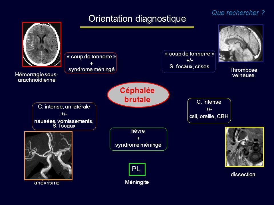 Céphalée brutale Que rechercher ? Orientation diagnostique « coup de tonnerre » + syndrome méningé C. intense +/- œil, oreille, CBH anévrisme Thrombos