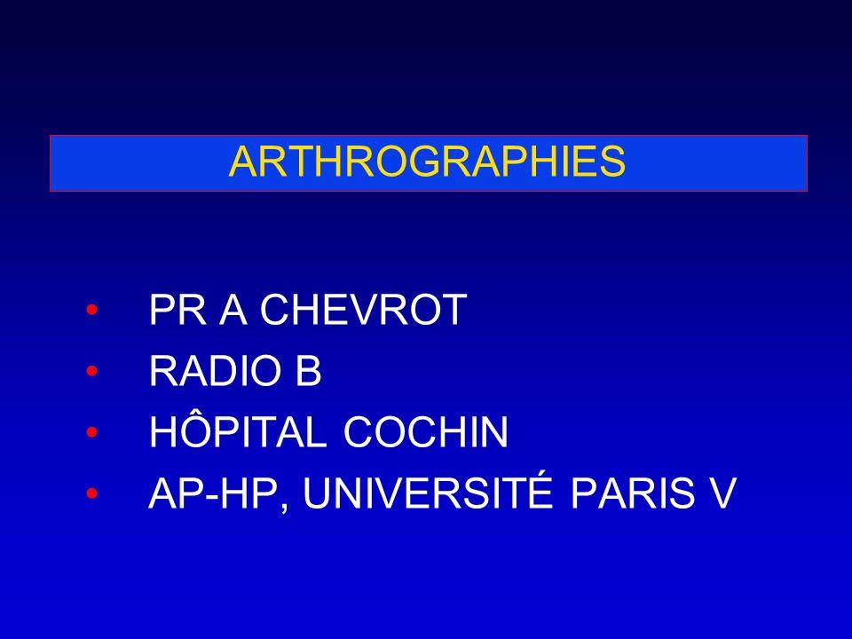 ARTHROGRAPHIE SCHÉMATIQUE