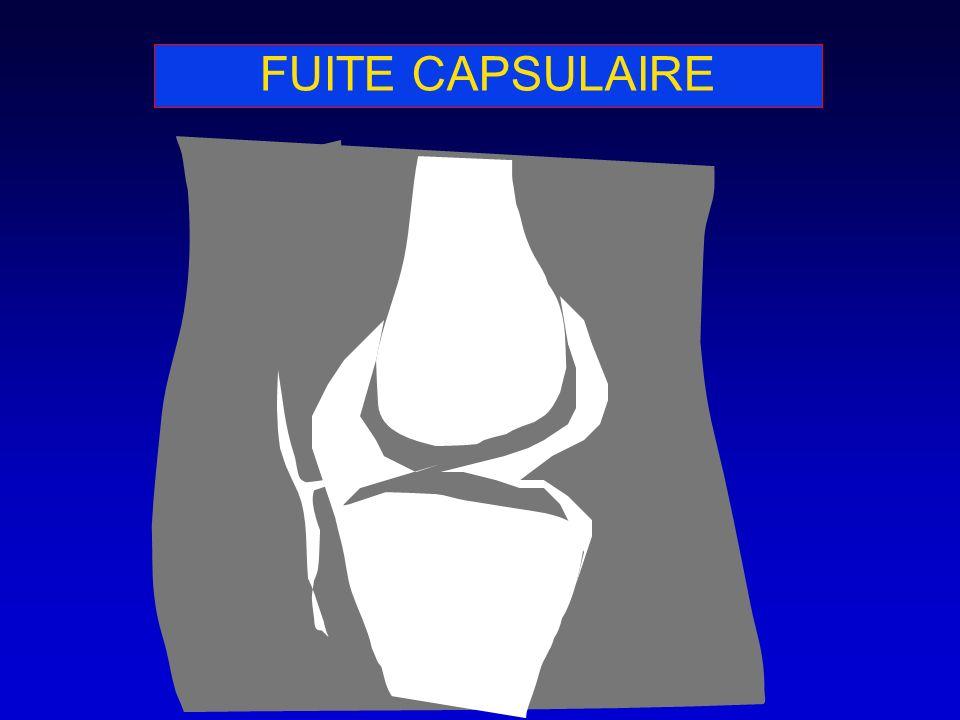 FUITE CAPSULAIRE
