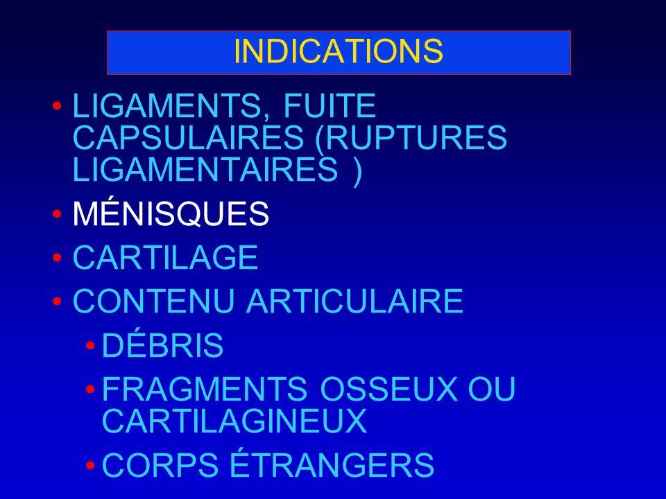 INDICATIONS LIGAMENTS, FUITE CAPSULAIRES (RUPTURES LIGAMENTAIRES ) MÉNISQUES CARTILAGE CONTENU ARTICULAIRE DÉBRIS FRAGMENTS OSSEUX OU CARTILAGINEUX CO