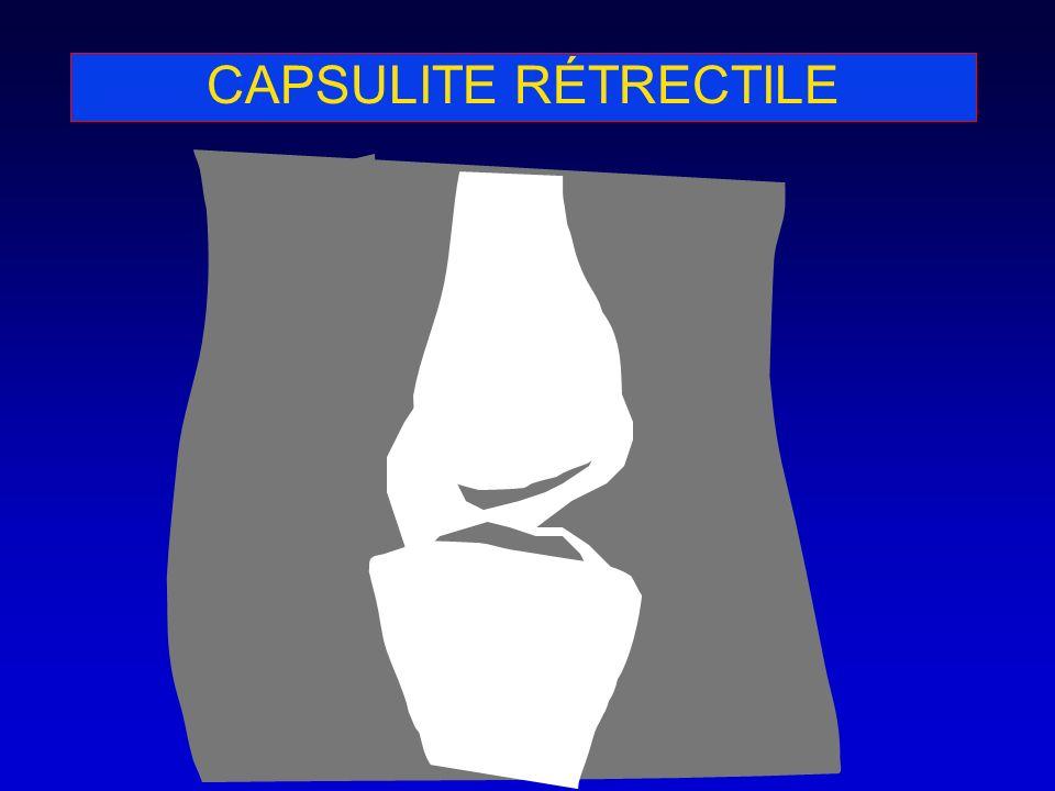 CAPSULITE RÉTRECTILE