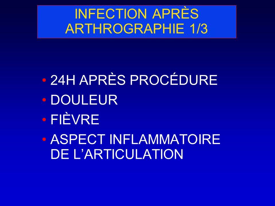 INFECTION APRÈS ARTHROGRAPHIE 1/3 24H APRÈS PROCÉDURE DOULEUR FIÈVRE ASPECT INFLAMMATOIRE DE LARTICULATION