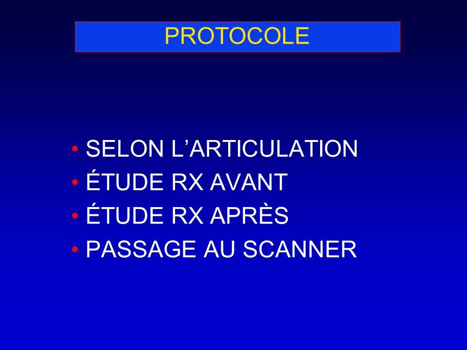PROTOCOLE SELON LARTICULATION ÉTUDE RX AVANT ÉTUDE RX APRÈS PASSAGE AU SCANNER