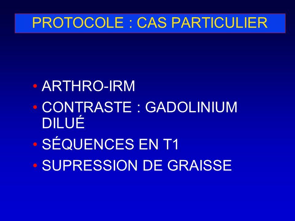 PROTOCOLE : CAS PARTICULIER ARTHRO-IRM CONTRASTE : GADOLINIUM DILUÉ SÉQUENCES EN T1 SUPRESSION DE GRAISSE