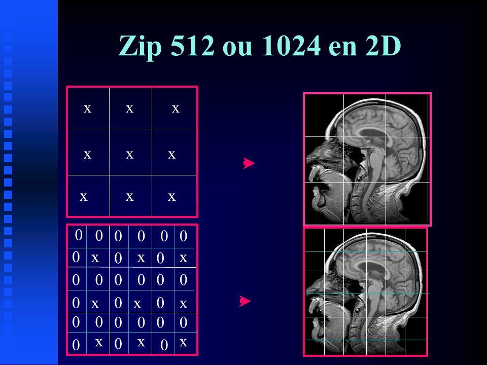 Zip 512