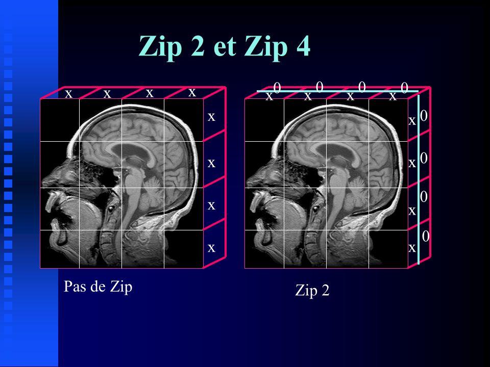 Le nombre dexcitations - Modifie S/B sans influencer la RS - Multiplier Nex par 2 => S/B de racine carré de 2, soit 41% mais Tac x 2 - Nex => artefacts - Nex pour compenser épaisseur de coupe ou de FOV ou de matrice
