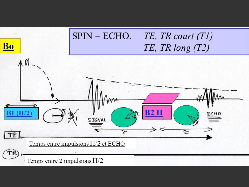 B2 Π B1 (Π/2) Bo SPIN – ECHO. TE, TR court (T1) TE, TR long (T2) Temps entre impulsions Π/2 et ECHO Temps entre 2 impulsions Π/2