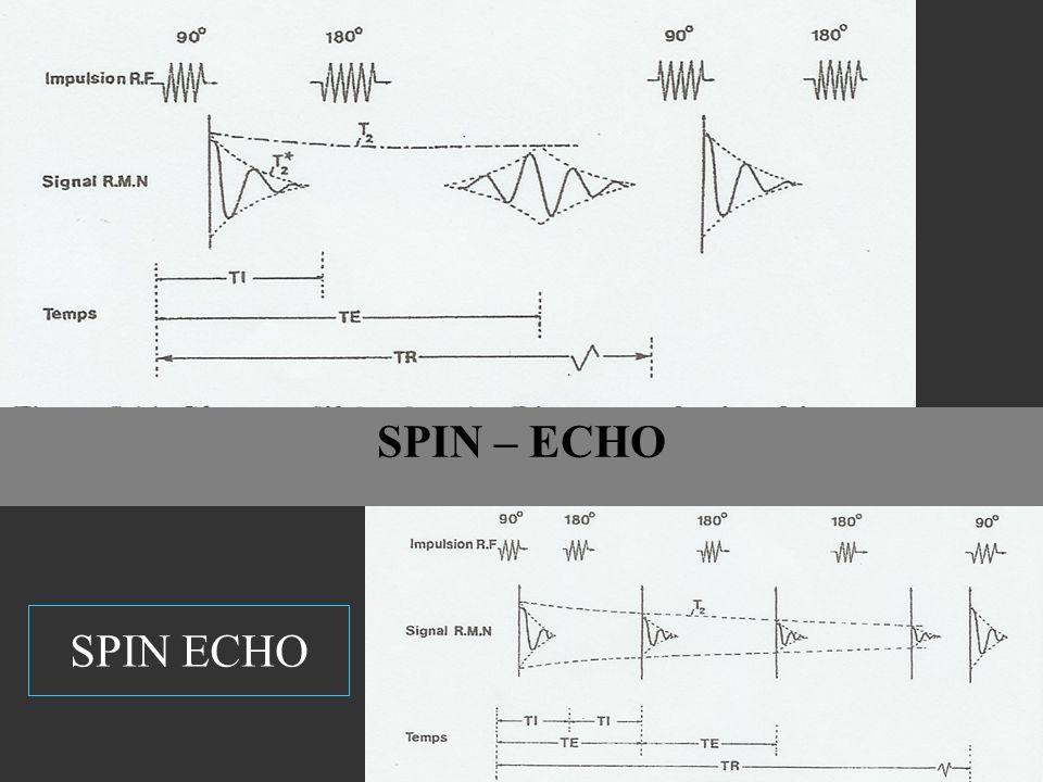 SPIN ECHO SPIN – ECHO