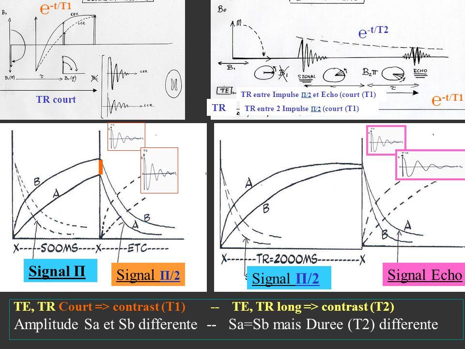 TE, TR Court => contrast (T1) -- TE, TR long => contrast (T2) Amplitude Sa et Sb differente -- Sa=Sb mais Duree (T2) differente TR court TR - t/T1 -t/