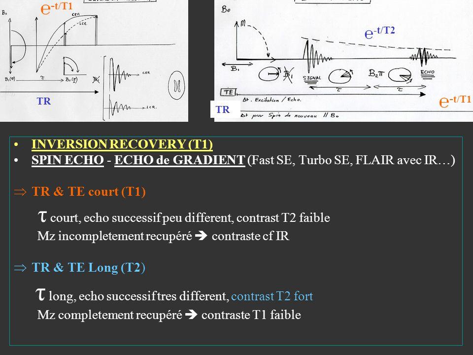 INVERSION RECOVERY (T1) SPIN ECHO - ECHO de GRADIENT (Fast SE, Turbo SE, FLAIR avec IR…) TR & TE court (T1) τ court, echo successif peu different, con