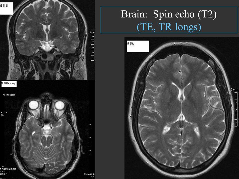 Brain: Spin echo (T2) (TE, TR longs)