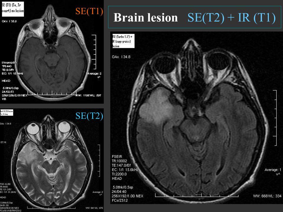 Brain lesion SE(T2) + IR (T1) SE(T2) SE(T1)