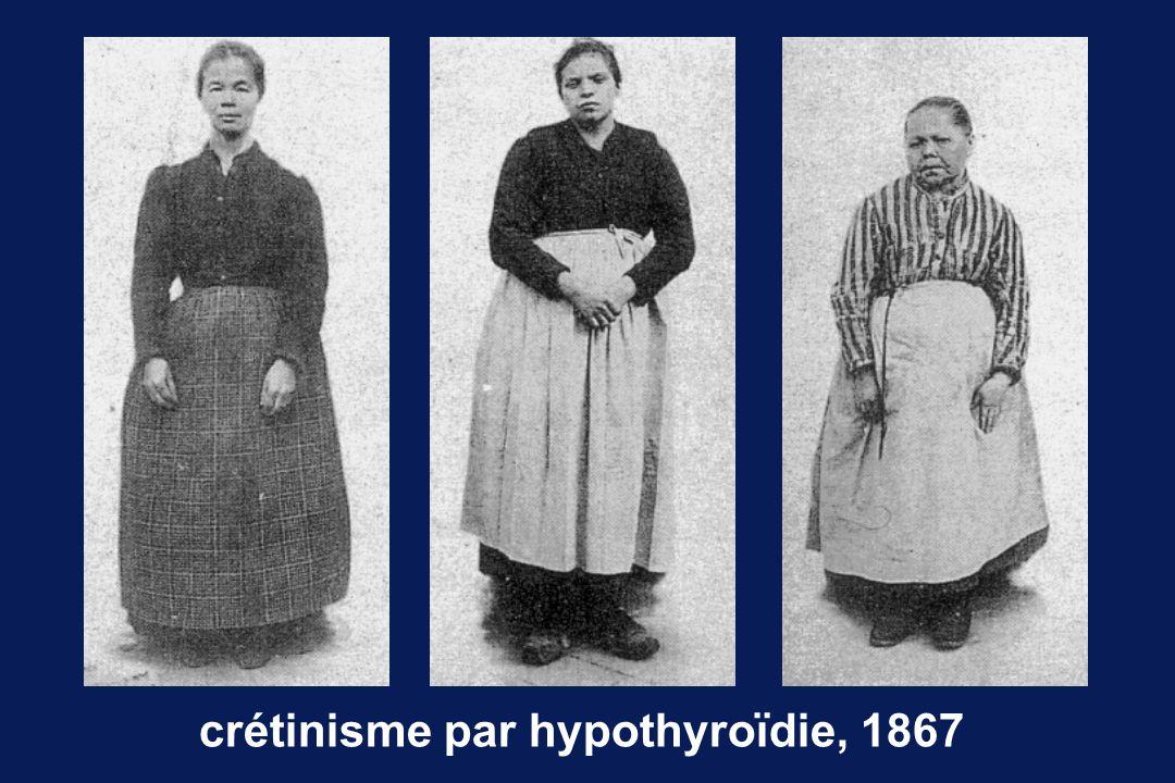 crétinisme par hypothyroïdie, 1867