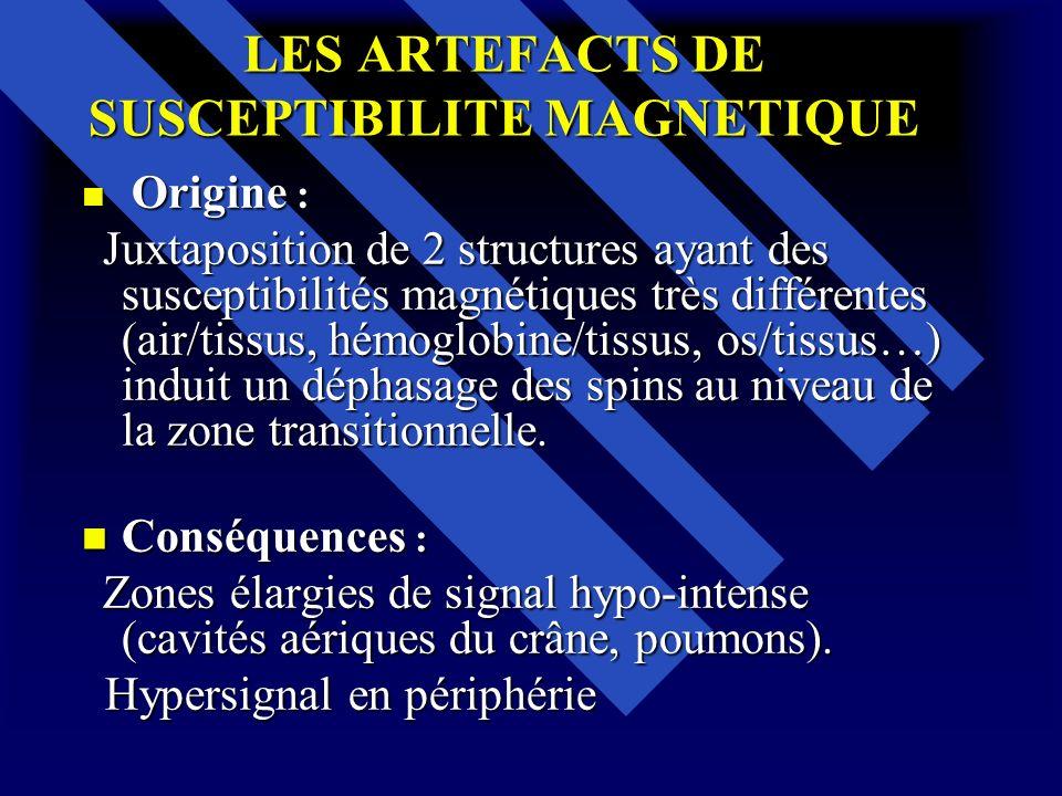 LES ARTEFACTS DE SUSCEPTIBILITE MAGNETIQUE Origine : Origine : Juxtaposition de 2 structures ayant des susceptibilités magnétiques très différentes (a