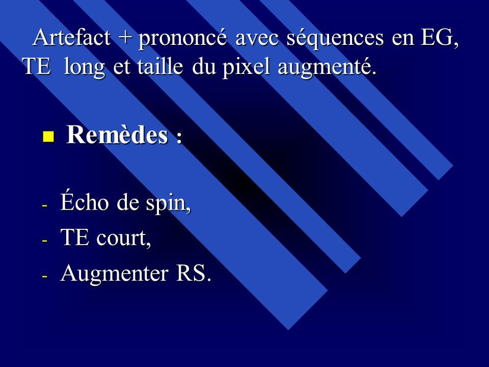 Remèdes : Remèdes : - Écho de spin, - TE court, - Augmenter RS. Artefact + prononcé avec séquences en EG, Artefact + prononcé avec séquences en EG, TE