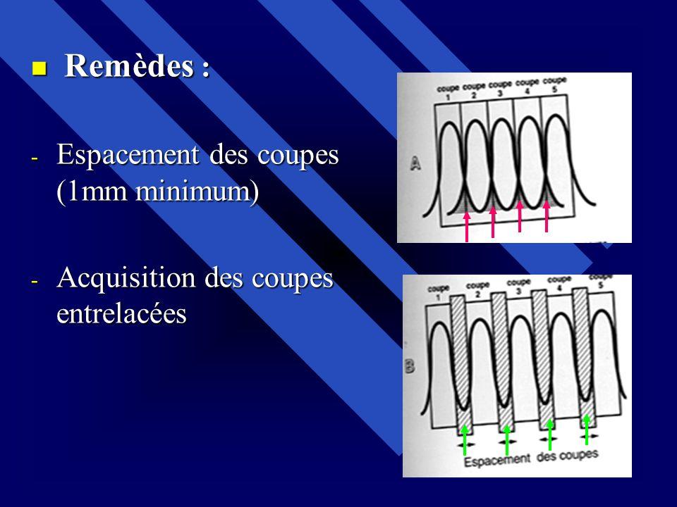 Remèdes : Remèdes : - Espacement des coupes (1mm minimum) - Acquisition des coupes entrelacées