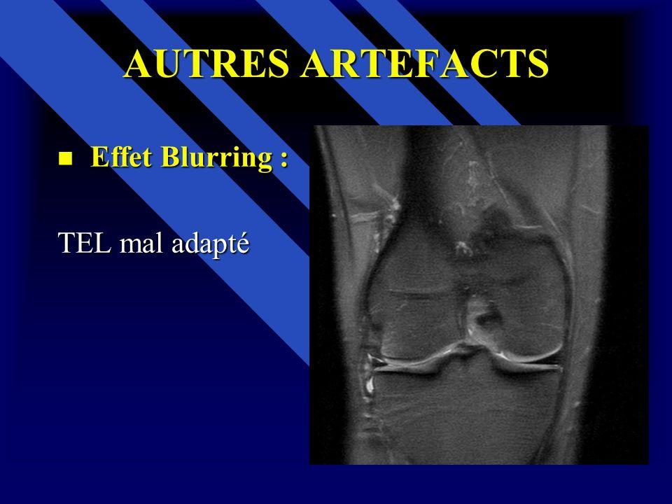 AUTRES ARTEFACTS Effet Blurring : Effet Blurring : TEL mal adapté