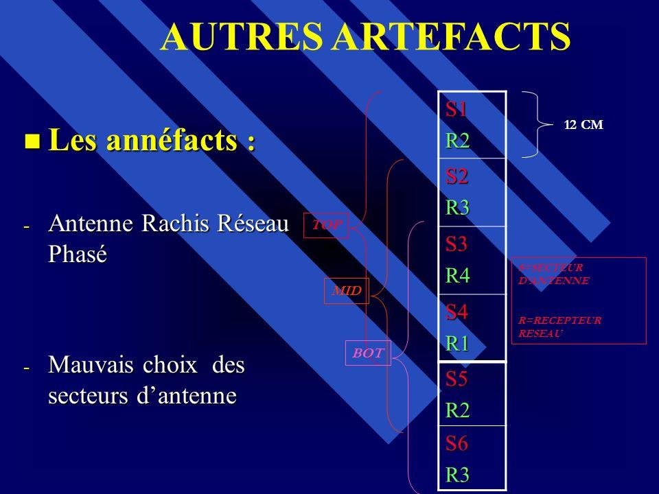 Les annéfacts : Les annéfacts : - Antenne Rachis Réseau Phasé - Mauvais choix des secteurs dantenne S1R2 S2R3 S3R4 S4R1 S5R2S6R3 12 CM TOP MID BOT S=S