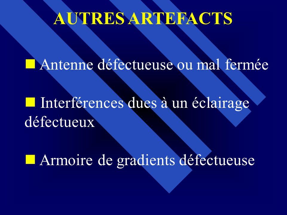 Antenne défectueuse ou mal fermée Interférences dues à un éclairage défectueux Armoire de gradients défectueuse AUTRES ARTEFACTS