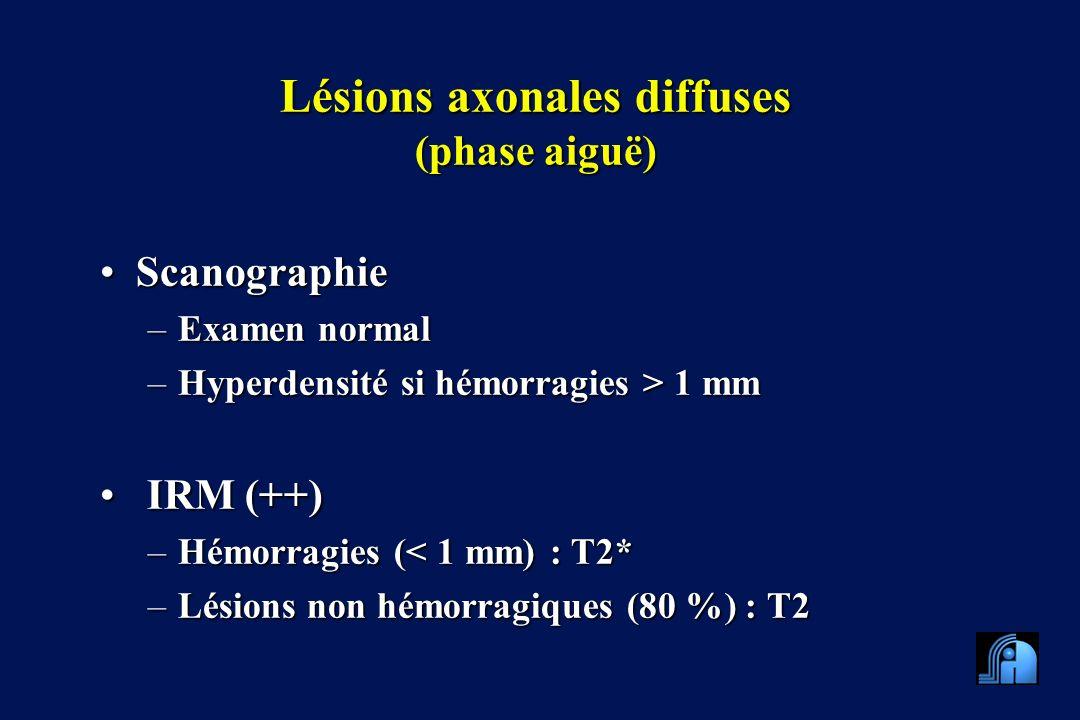 Lésions axonales diffuses (phase aiguë) ScanographieScanographie –Examen normal –Hyperdensité si hémorragies > 1 mm IRM (++) IRM (++) –Hémorragies (< 1 mm) : T2* –Lésions non hémorragiques (80 %) : T2