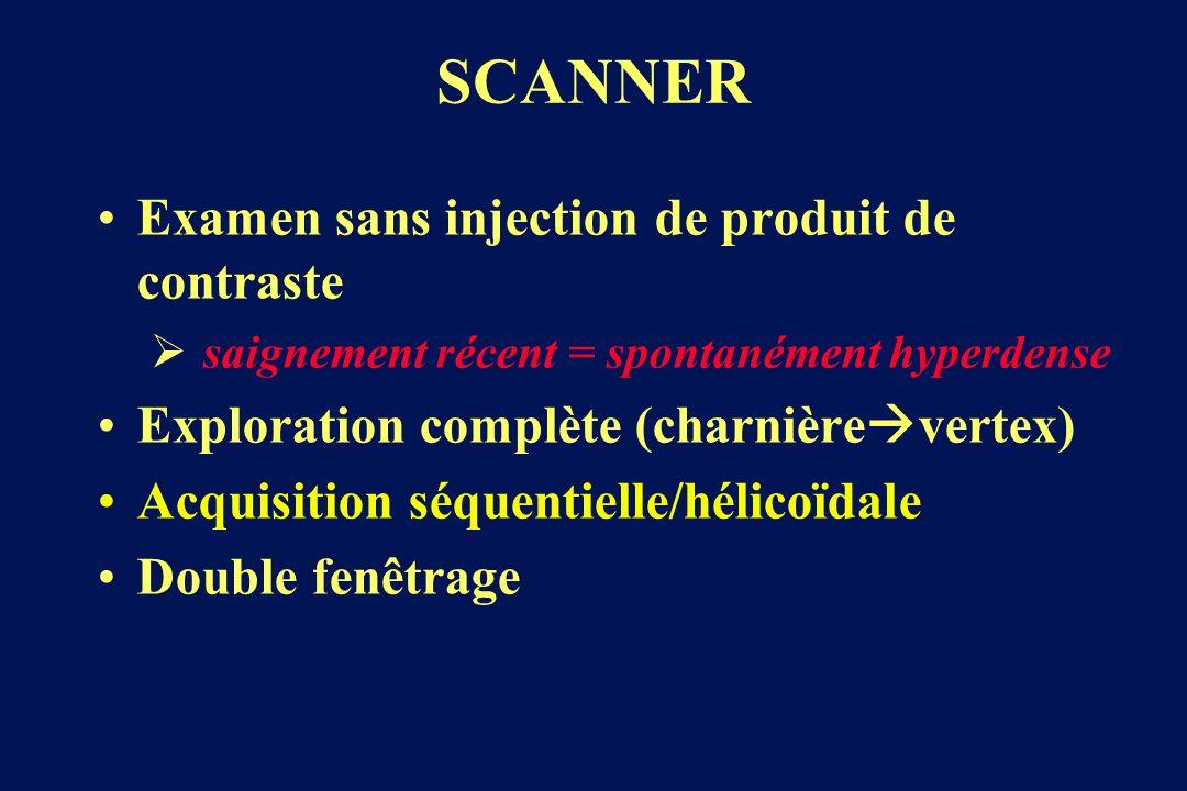 Examen sans injection de produit de contraste saignement récent = spontanément hyperdense Exploration complète (charnière vertex) Acquisition séquentielle/hélicoïdale Double fenêtrage SCANNER