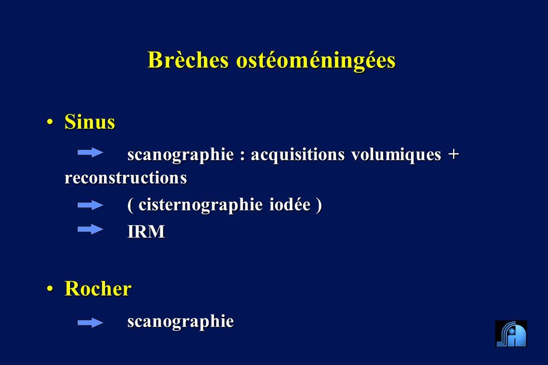 Brèches ostéoméningées SinusSinus scanographie : acquisitions volumiques + reconstructions ( cisternographie iodée ) IRM RocherRocherscanographie