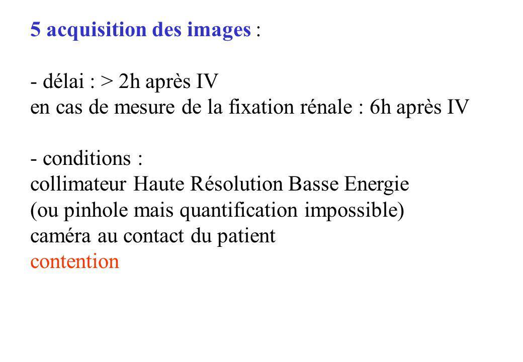 5 acquisition des images : - délai : > 2h après IV en cas de mesure de la fixation rénale : 6h après IV - conditions : collimateur Haute Résolution Ba
