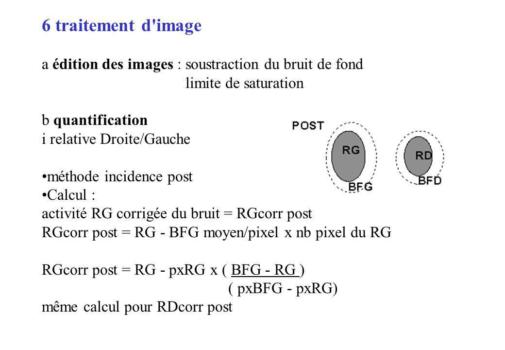 6 traitement d'image a édition des images : soustraction du bruit de fond limite de saturation b quantification i relative Droite/Gauche méthode incid