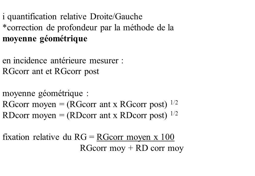 i quantification relative Droite/Gauche *correction de profondeur par la méthode de la moyenne géométrique en incidence antérieure mesurer : RGcorr an