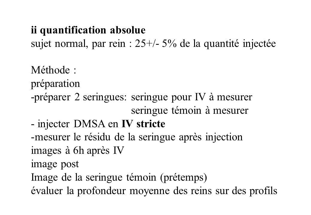 ii quantification absolue sujet normal, par rein : 25+/- 5% de la quantité injectée Méthode : préparation -préparer 2 seringues: seringue pour IV à me